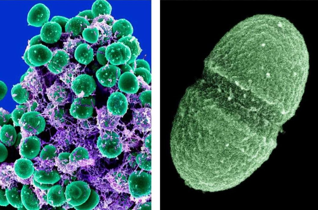 At left: Staphylococcus epidermidis bacteria (colored green) in the extracellular matrix, taken with a scanning electron microscope, showing. At right, image by the Agriculture Department showing the bacterium, Enterococcus faecalis,